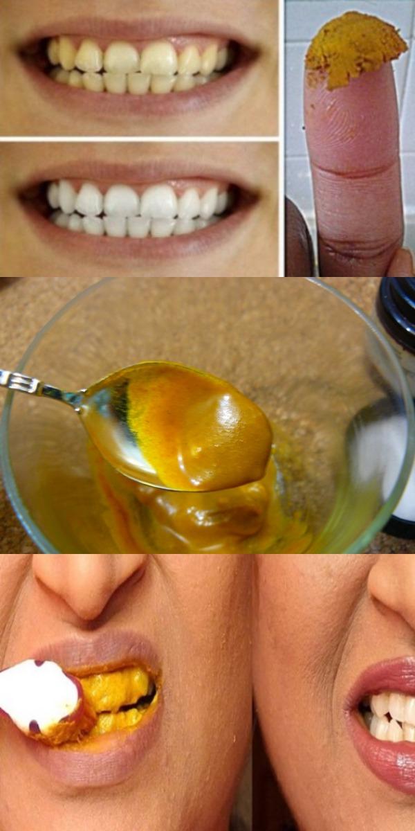 Будьте сами стоматологом! Вылечите кариес, десна и отбелите зубы с этой натуральной зубной пастой