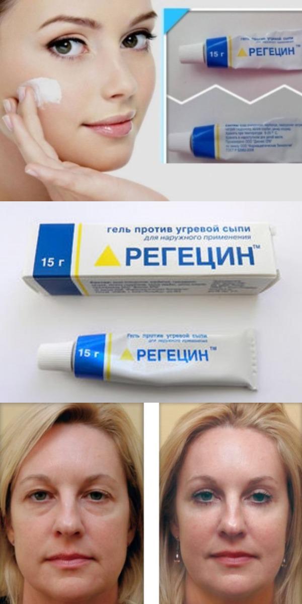 СЕНСАЦИЯ Регецин – лучшее средство от мимических морщин и мешков под глазами