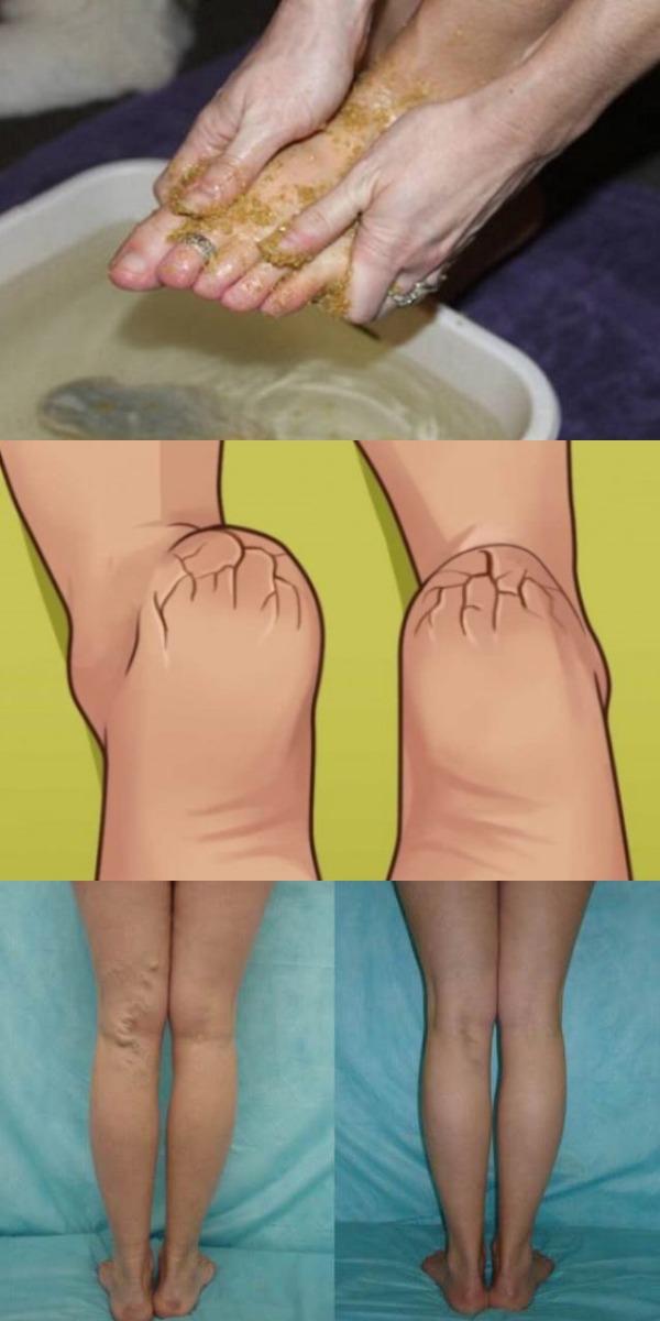 Натрите ноги этим средством и попрощайтесь с варикозным расширением вен, мозолями и потрескавшимися пятками всего за 10 дней!
