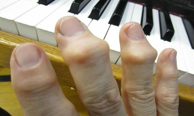 Косточки на суставах — зрелище не из приятных. Курс 10 процедур, таким образом можно избавиться и от «косточек» на ногах!
