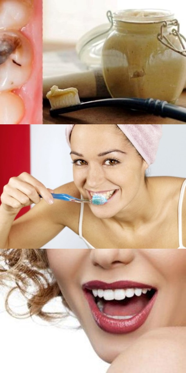 Эти 5 шагов помогут избавиться от многих проблем с зубами