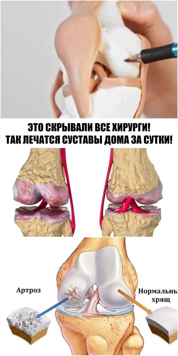 Это скрывали все хирурги! Так лечатся суставы дома за сутки